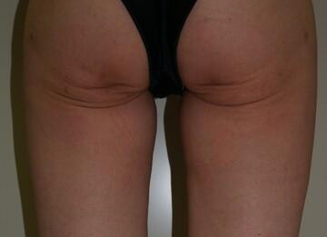 タウン形成外科クリニックの痩身、メディカルダイエットの症例写真[ビフォー]