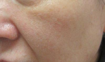 ヴィーナスヴェルサ 15回(5回×3クール)の症例写真[アフター]