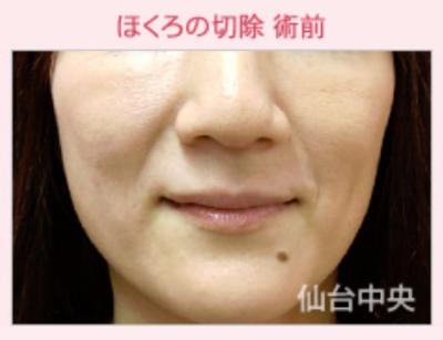 黒子除去、顎の黒子の症例写真[ビフォー]