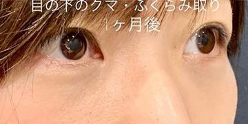 ルラ美容クリニック高田馬場院の目元の整形、くま治療の症例写真[アフター]