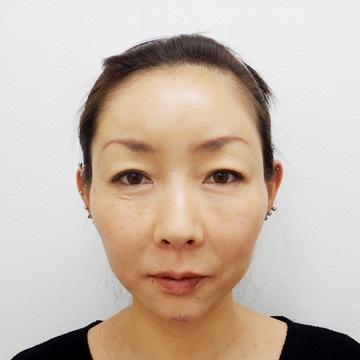 水の森美容外科の顔のしわ・たるみの整形(リフトアップ手術)の症例写真[アフター]
