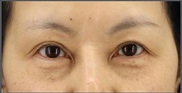 銀座長瀬クリニックの目元の整形、くま治療の症例写真[ビフォー]