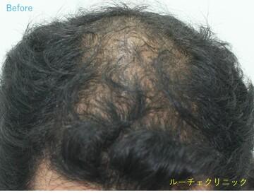 の植毛・自毛植毛の症例写真[ビフォー]