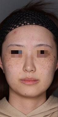 シミ、そばかす治療の症例写真[ビフォー]