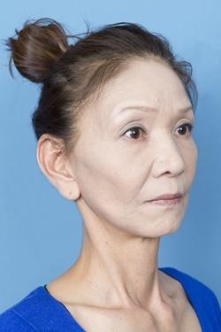 新宿中央クリニックの顔のしわ・たるみの整形(リフトアップ手術)の症例写真[アフター]