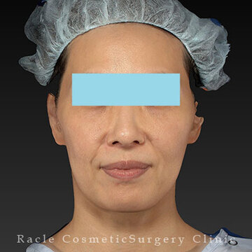 新宿ラクル美容外科クリニックのシワ・たるみ(照射系リフトアップ治療)の症例写真[ビフォー]