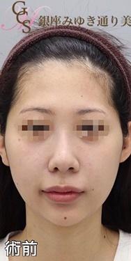 銀座みゆき通り美容外科大阪院の顔の整形(輪郭・顎の整形)の症例写真[ビフォー]