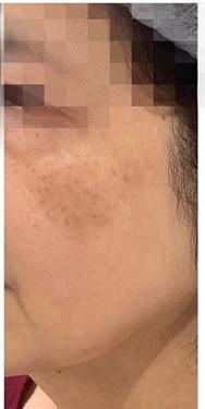 銀座長瀬クリニック 大阪院のシミ治療(シミ取り)・肝斑・毛穴治療の症例写真[アフター]