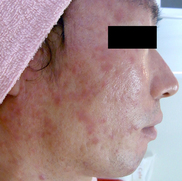 ドーズ美容外科のニキビ治療・ニキビ跡の治療の症例写真[ビフォー]