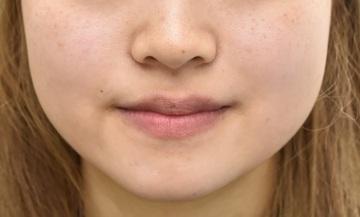 心斎橋コムロ美容外科クリニックの顔の整形(輪郭・顎の整形)の症例写真[アフター]