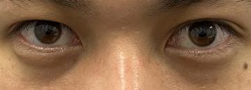 湘南美容クリニック 池袋西口院の目・二重の整形の症例写真[ビフォー]