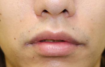 千葉中央美容形成クリニックの口もと、唇の整形の症例写真[アフター]
