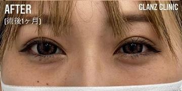 GLANZ CLINIC (グランツクリニック)の症例写真[アフター]