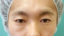 青山セレスクリニックの目・二重の整形の症例写真[ビフォー]