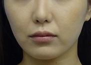 東京中央美容外科・美容皮膚科の症例写真[アフター]