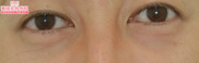 湘南美容クリニック浜松院の目元の整形、くま治療の症例写真[アフター]