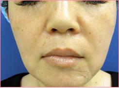 城本クリニックの顔のしわ・たるみの整形(リフトアップ手術)の症例写真[ビフォー]