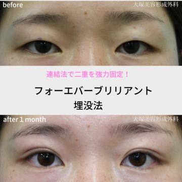 大塚美容形成外科・歯科の目・二重整形の症例写真