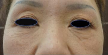 天神かよこクリニックのシワ・たるみ(照射系リフトアップ治療)の症例写真[ビフォー]