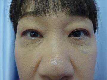 鹿児島三井中央クリニックの目元の整形、くま治療の症例写真[アフター]