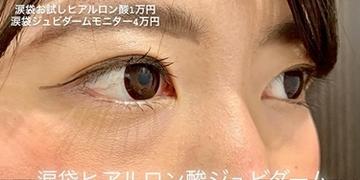 ルラ美容クリニックの目元の整形、くま治療の症例写真[ビフォー]