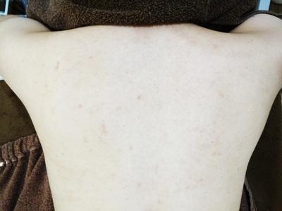ケミカルピーリングで背中ニキビ治療[アフター]