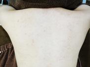 イデア美容皮膚科クリニックの症例写真[アフター]