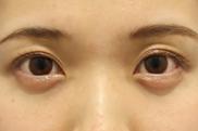 東京イセアクリニック渋谷院の目元の整形、くま治療の症例写真[アフター]