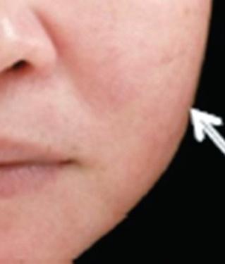 さくらこまち皮フ科クリニックのシワ・たるみ(照射系リフトアップ治療)の症例写真[ビフォー]