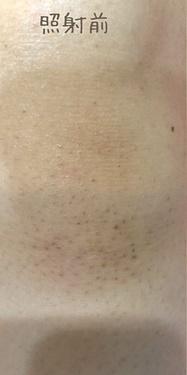 の医療レーザー脱毛の症例写真[ビフォー]