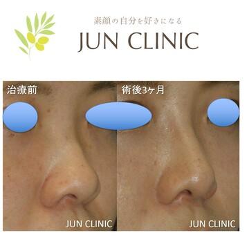 JUN CLINIC ジュンクリニックの鼻の整形の症例写真