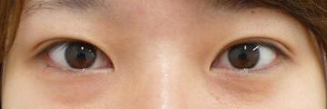 広島プルミエクリニックの目・二重の整形の症例写真[アフター]