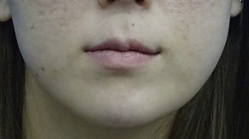 TCB東京中央美容外科の口元・唇の整形の症例写真[ビフォー]