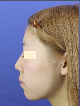 鼻中隔延長・鼻柱下降 (肋軟骨)の症例写真[ビフォー]