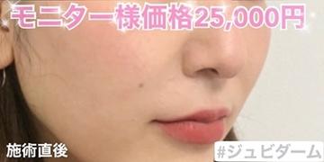 ルラ美容クリニックの顔のしわ・たるみの整形(リフトアップ手術)の症例写真[アフター]