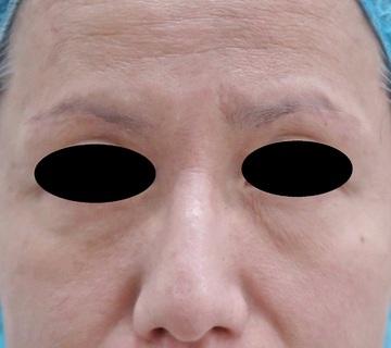 スキンコスメクリニックグループの目・二重の整形の症例写真[アフター]