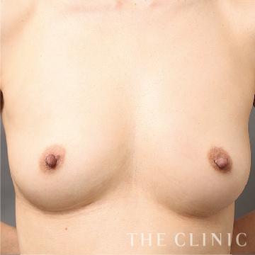 THE CLINIC(ザ・クリニック)の豊胸・胸の整形の症例写真[アフター]