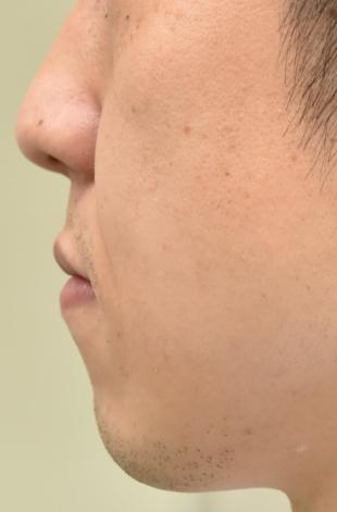 医療法人秀晄会 心斎橋コムロ美容外科クリニックの輪郭・顎の整形の症例写真[ビフォー]