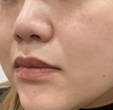 さっぽろ美容クリニック 本院の顔のしわ・たるみの整形の症例写真[ビフォー]