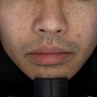 ReVIOS(レヴィオス)の医療脱毛の症例写真[ビフォー]