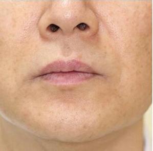 タカナシクリニック新宿の医療レーザー脱毛の症例写真[アフター]