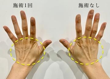くさのたろうクリニックのシミ治療(シミ取り)・肝斑・毛穴治療の症例写真