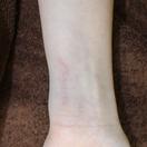切除法による刺青・タトゥー除去[アフター]