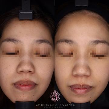 CHERI BEAUTY CLINIC (シェリビューティークリニック)のシミ治療(シミ取り)・肝斑・毛穴治療の症例写真[ビフォー]