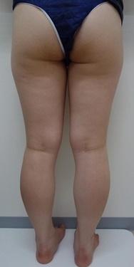 SELECT CLINIC (セレクトクリニック)の痩身、メディカルダイエットの症例写真[ビフォー]