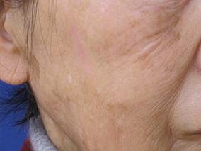 ハートライフクリニックのシミ治療(シミ取り)・肝斑・毛穴治療の症例写真[アフター]