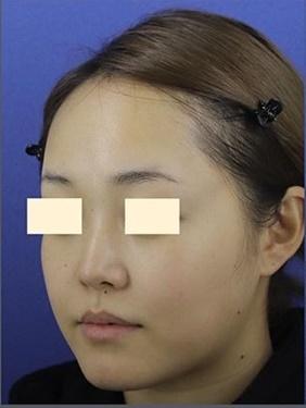 プロテーゼ・鼻中隔延長の症例写真[ビフォー]