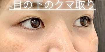 ルラ美容クリニックの目元の整形、くま治療の症例写真[アフター]