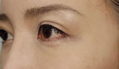 MD式眉下切開法/術後6日 抜糸直後の症例写真[アフター]