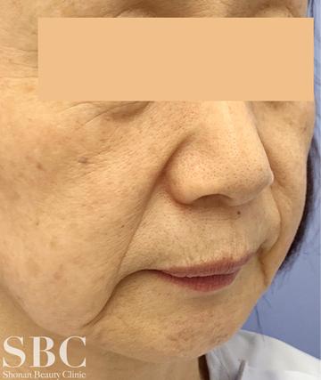湘南美容クリニック 姫路院の顔のしわ・たるみの整形の症例写真[ビフォー]